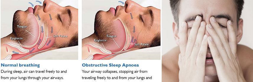 Medical Oxygen cylinder for sleep apnea